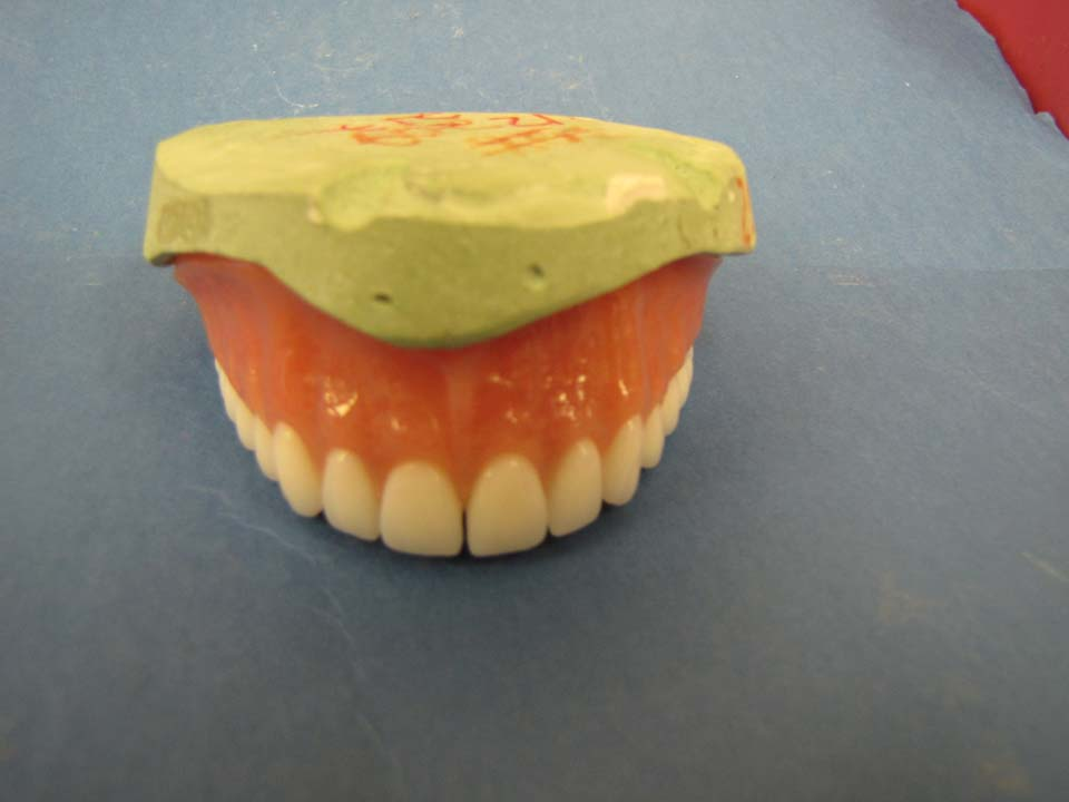 Denture over milled bar with Bredent attachments