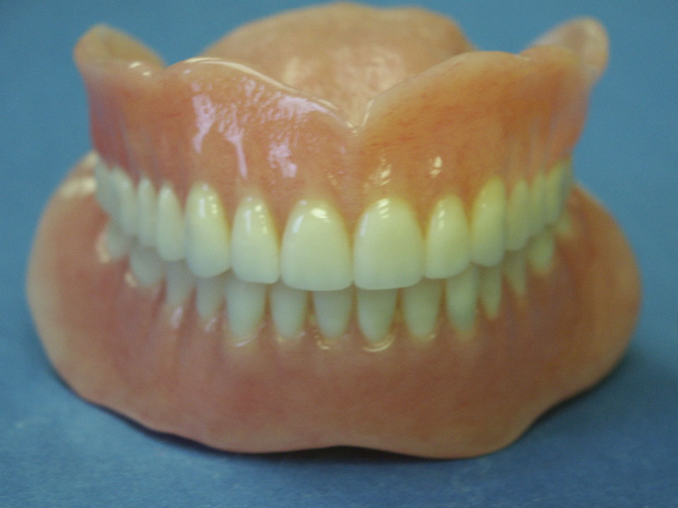 Upper and lower dentures. Fiber force and metal reinforcements available