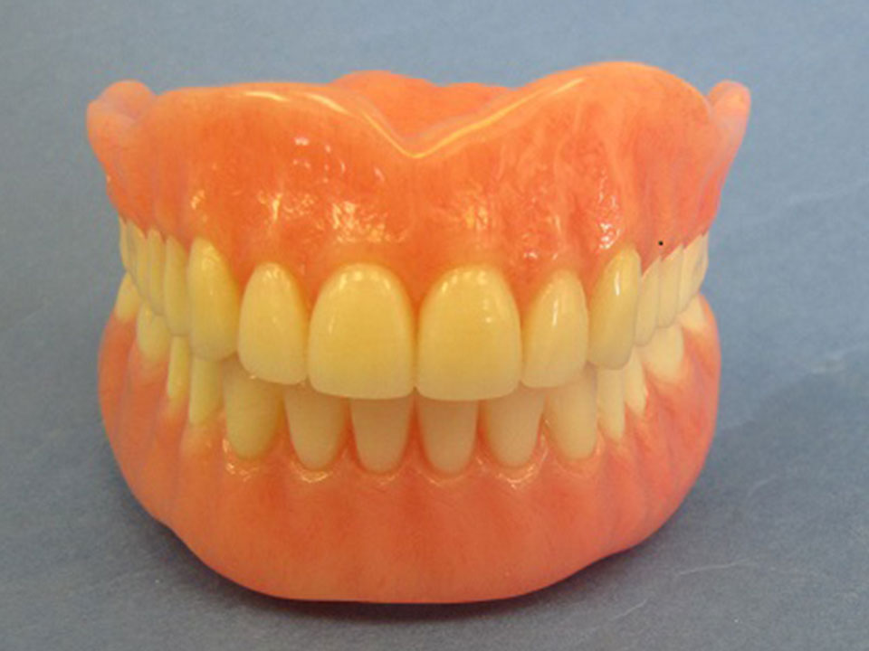 Upper and Lower Dentures