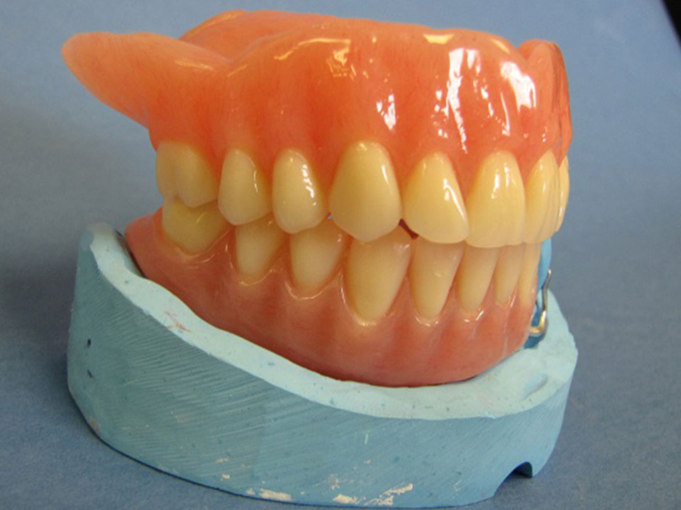 Upper Full Denture and Lower Partial with Frame
