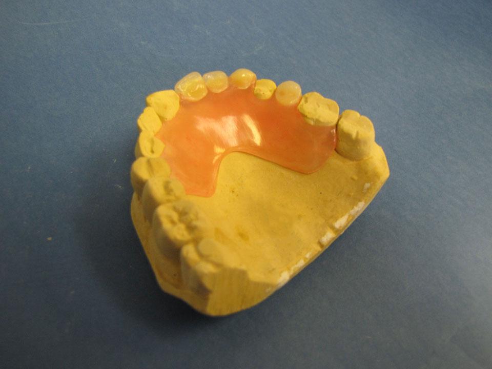 Valplast upper partial